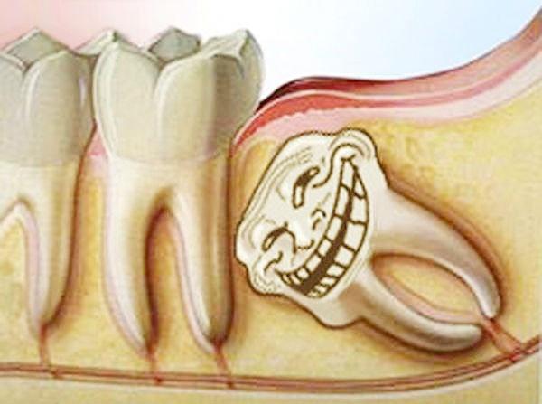 How to stay wise when your Wisdom Teeth go crazy./ Как остаться мудрым,когда зубы мудрости сходят с ума.